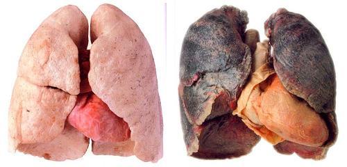 zdrave-nemocne-plice